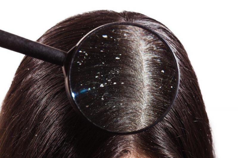 Cara Menghilangkan Ketombe di Rambut Secara Alami